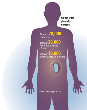 Kidney transplants by numbers.