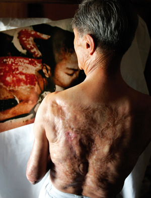 Survivor: Nagasaki bomb victim Sumiteru Taniguchi looks at a photo of himself taken in 1945. His horrific burns have required 17 operations.
