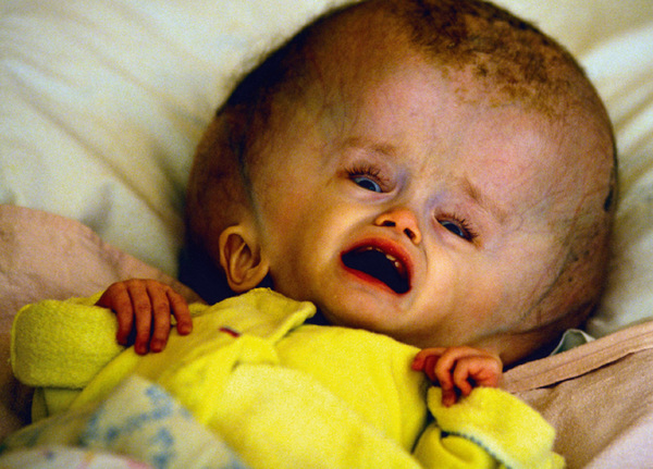 Test victim: an abandoned baby in Semipalatansk, Russia's nuclear test site. Over a million people in the region have been contaminated with radiation from over 500 bomb explosions.