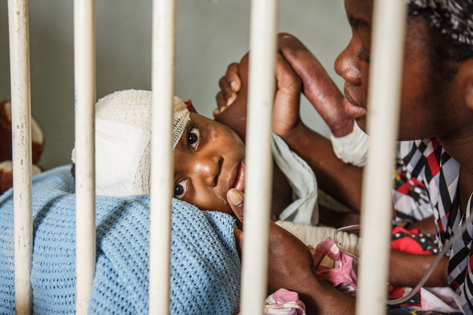 Jacqueline (2-years-old) has just come out of the operating theatre. She suffered severe burns and had to have her second surgery in Kamuru Central Hospital in Malawi's capital Lilongwe.