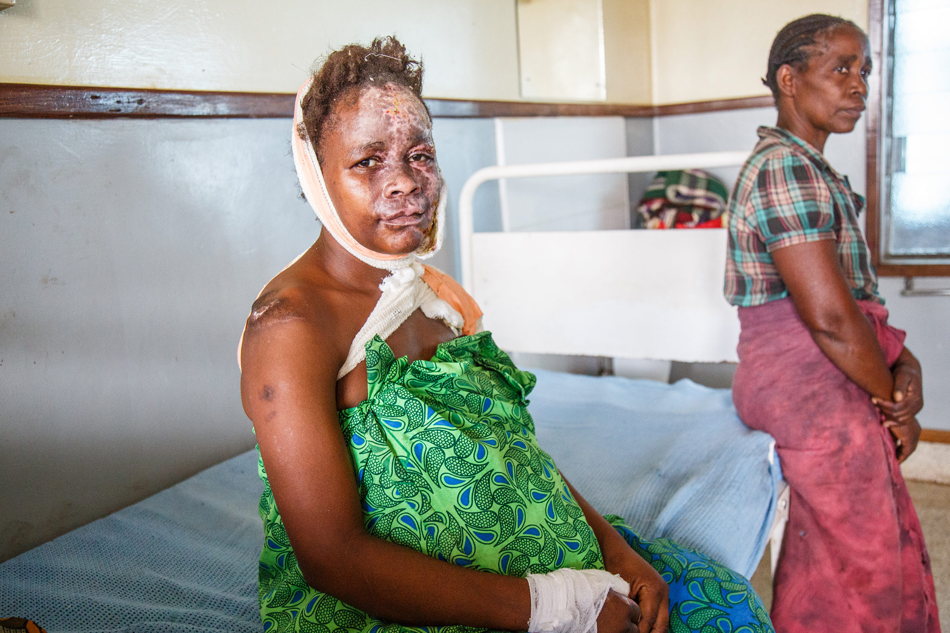 Mary suffers from epilepsy. Her face and hair burned when she fell in the fire – she remembers only pain. Now she is getting treatment on the Kamuzu hospital's burn ward, she is on the mend.