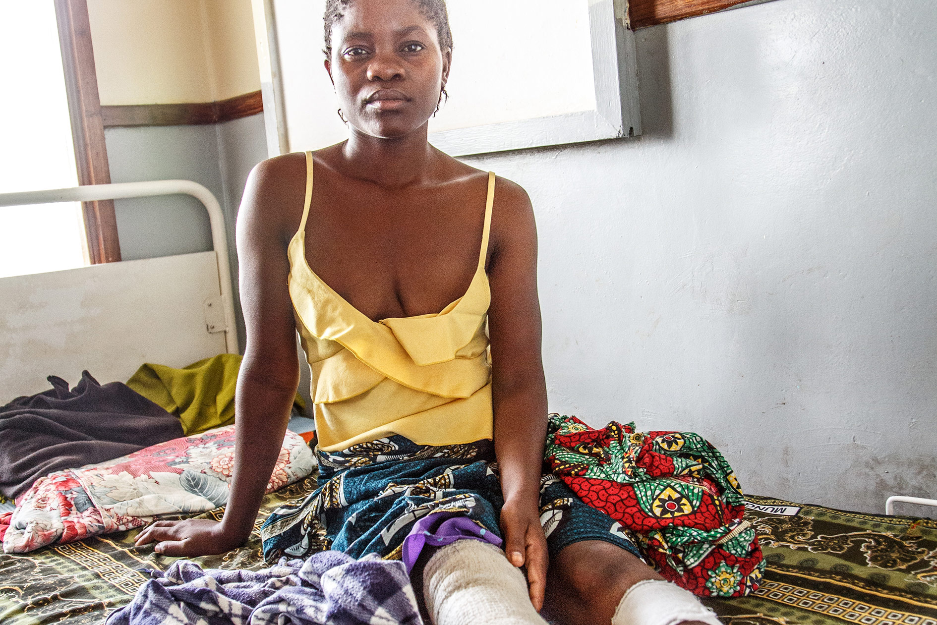 Regina Phirie, 24-years-old, had a pot with burning fluid fall over her legs. Both legs are burned to the third degree. Regina's mother keeps her company in the hospital and reads her from the Bible.