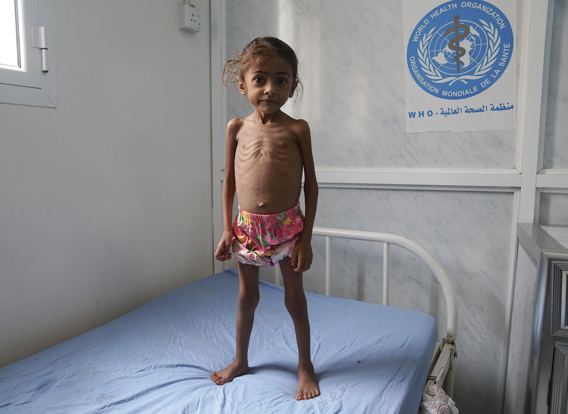 Three-year-old Kholod is admitted to hospital in Hudaida, Yemen suffering from severe acute malnutrition.* One of five children, her father is a teacher but he has not been paid for a year. Extreme hunger and disease are killing around 130 children every day in Yemen, according to Save the Children. [*We would not normally use a picture like this one in New Internationalist, but we felt that at a time when humanitarianism is under attack, it was important to show what is at stake, especially in an article that makes clear that famine is not just bad luck, it's political – ed.]